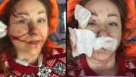 Cani koca, boşanmak isteyen Ukraynalı eşi Anna Butim'in yüzünü falçatayla parçaladı